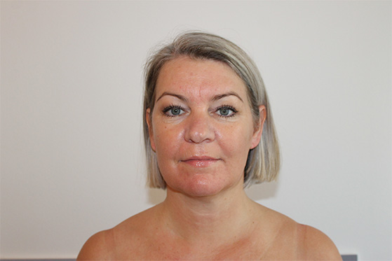 fjern rynker med akupunktur