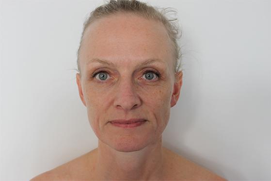 hvordan ser huden ud efter akupunktur